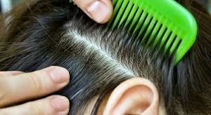 Определение отцовства по волосам и некоторые особенности
