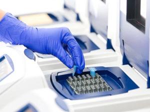 Стоимость ДНК теста в Москве